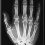 håndroten