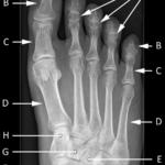 røntgenbilde av foten