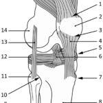 Kneet med meniscus